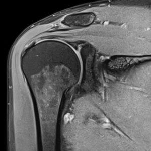 МРТ плечового суглоба